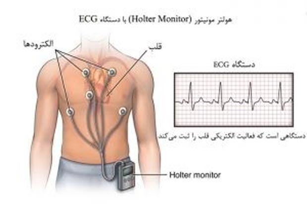 الکتروکاردیوگرام یا نوار قلب