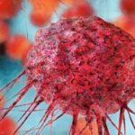 بیماري سرطان چیست؟