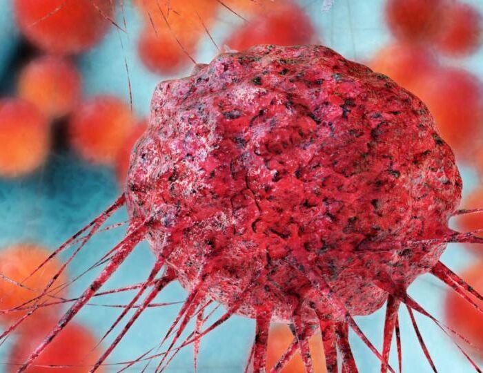 علایم سرطان چیست؟