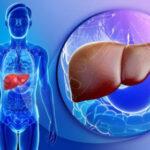 طبیعی ترین راه درمان کبد چرب با طب سنتی
