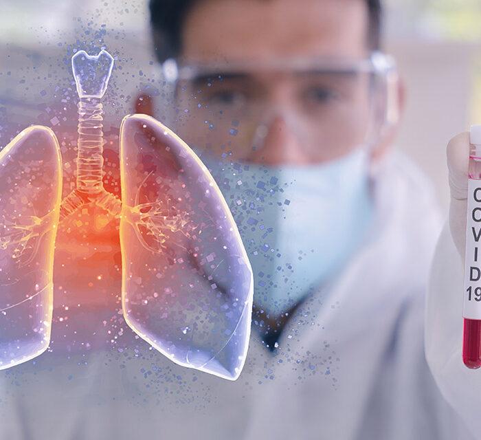 درمان عفونت ریه در کرونا با کمک داروهای گیاهی طب سنتی