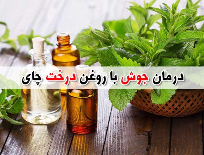 خواص روغن درخت چای برای جوش – درمان آکنه